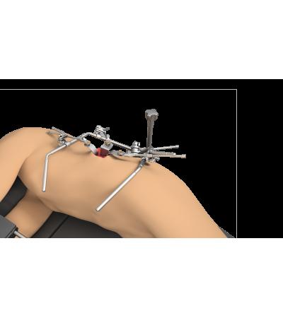 Liver and Kidney Transplant Instruments